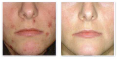 Acne Treatments in Mississauga
