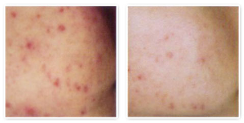 Acne Treatments Clinic in Mississauga