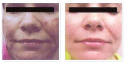 acne-treatment4