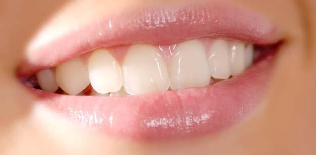 teeth-withening2